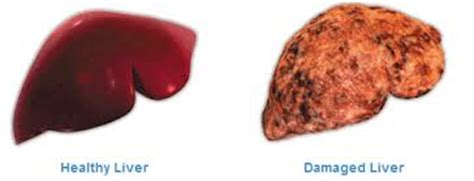 what to avoid for damaged liver picture 14