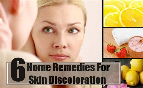 cure of skin discoloration picture 11