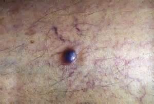 estrogen patch on penis picture 11