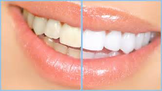 whitening picture 6