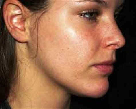 dry faces and acne picture 11