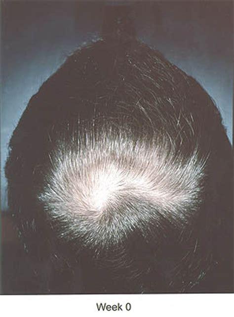 avodart is much hair picture 9