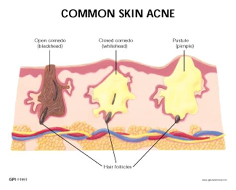 structure of skin modules picture 5