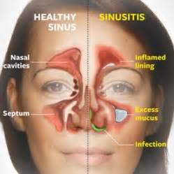 herbal sinus pressure cleanse picture 6