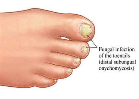 fungas on nails in blood stream picture 14