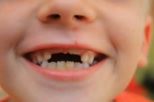 children's teeth pictures picture 9