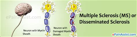 multiple sclerosis and gastrointestinal disorder picture 10
