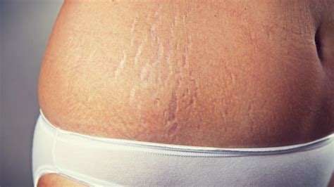 what is good for stretch marks picture 7