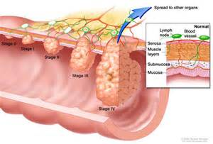 colon cancer in the muslce picture 5