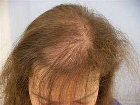 ricky reyes hairloss treatment picture 7