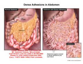 what is a lacerated colon picture 18