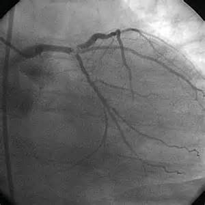aneurysm high blood pressure picture 15