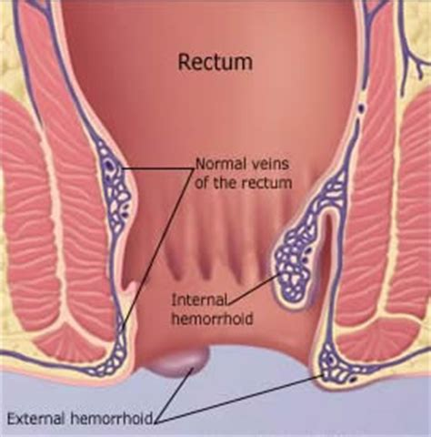 itchy hemorrhoids picture 7