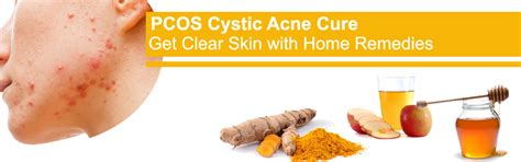 do ovarian cysts cause cystic acne picture 2