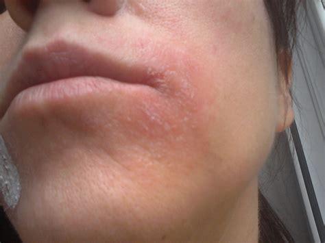 allergy in skin around eyes picture 14