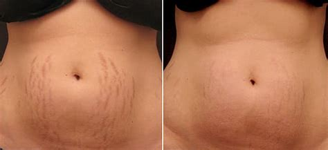 dmso stretch mark removal picture 7