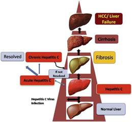 levels of liver failure picture 5
