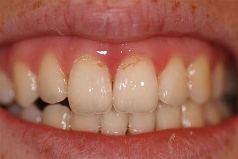drug ruin teeth picture 9