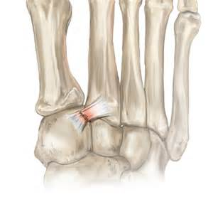 sports - knee joint picture 15