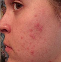 waxing acne picture 2