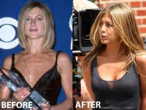 breast augmentation before picture 3