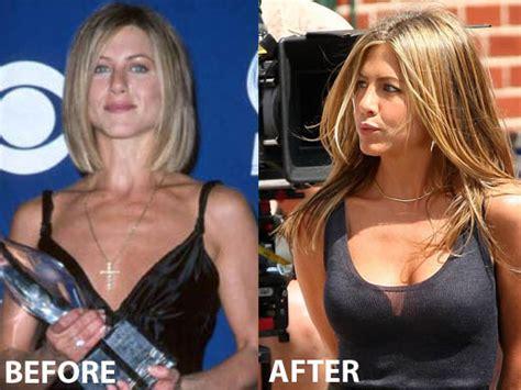 anniston breast enlargement picture 9