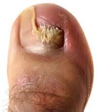 treat onychomycosis with probiotics picture 11