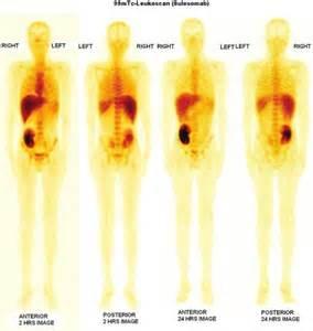 discordant thyroid nodule picture 9