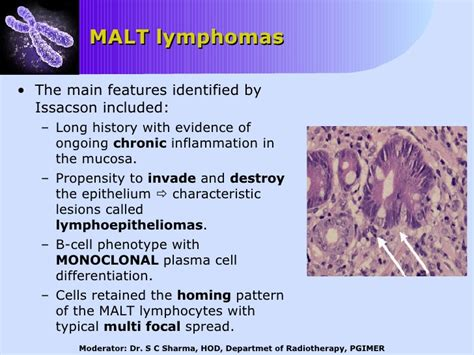 gastrointestinal lymphoma picture 7