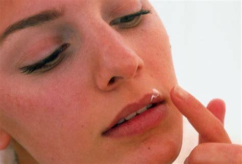 herpes simplex treatment picture 9