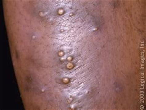 liver failure boils on skin picture 13