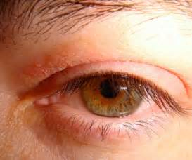 inflamed itch yeast infection relief picture 5