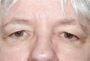 excess skin in eye picture 1