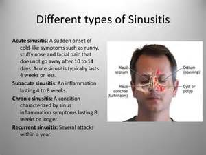 does sinus infection cause face and h pain picture 3
