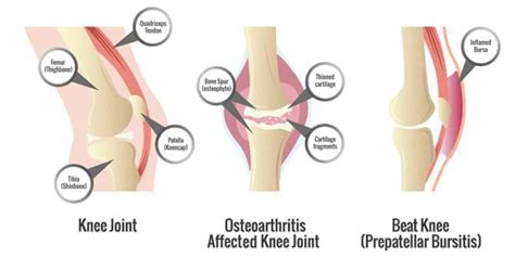 knee joint damage picture 7