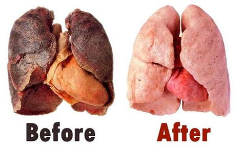 what damage second hand smoke can cause picture 4