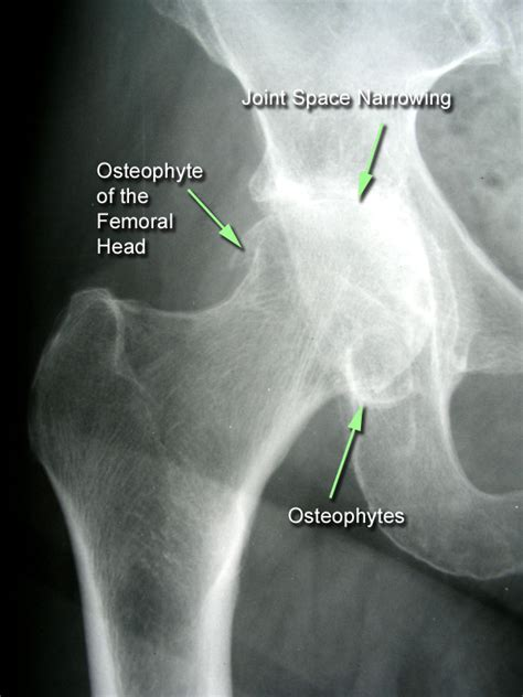 inferior osteophyte formation at the acromioclavicylar joint picture 3