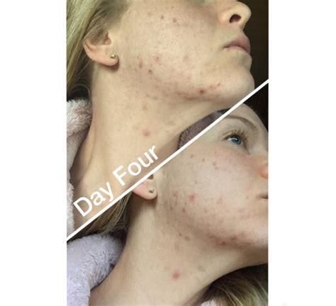 doryx for acne picture 9