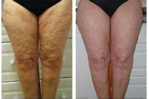 subcutaneous fat and cellulite picture 9