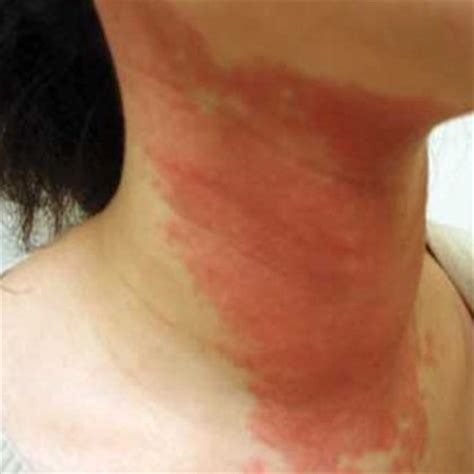 bacterial skin infection picture 6