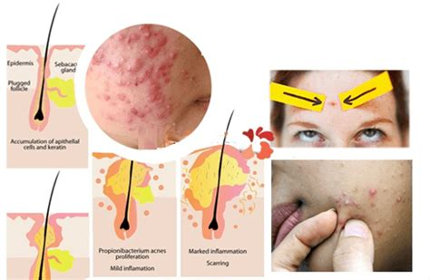 can vitalzym cure acne picture 10