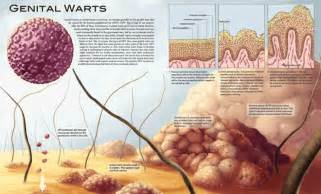 pictures of differnt types female genital warts picture 4