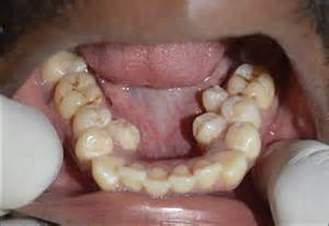 can extra teeth be added to flexible denture picture 4