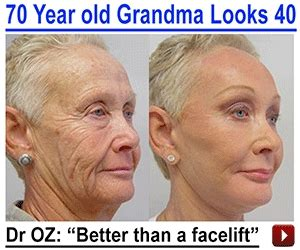 doctor oz on revitol anti-aging treatment picture 17