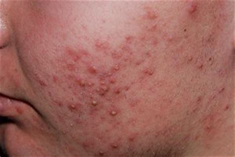 acne health webmaster picture 5