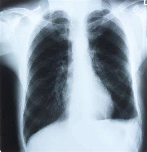 effects of k2 on the lungs picture 5