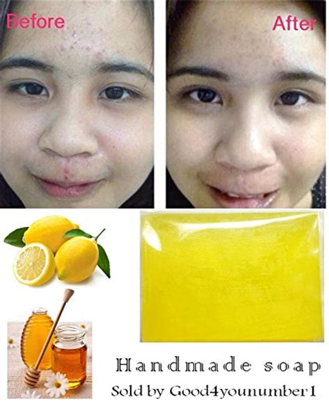 glutathione use in acne treatment picture 3