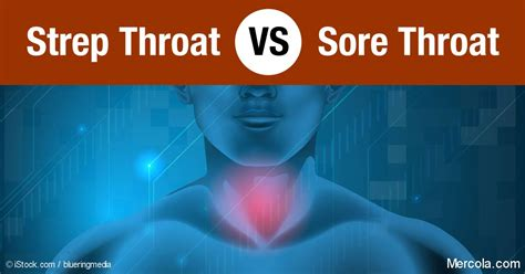 is there joint pain with strep throat picture 9