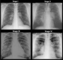 Pulmonary hypertension picture 9