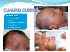 genital skin lesion picture 15